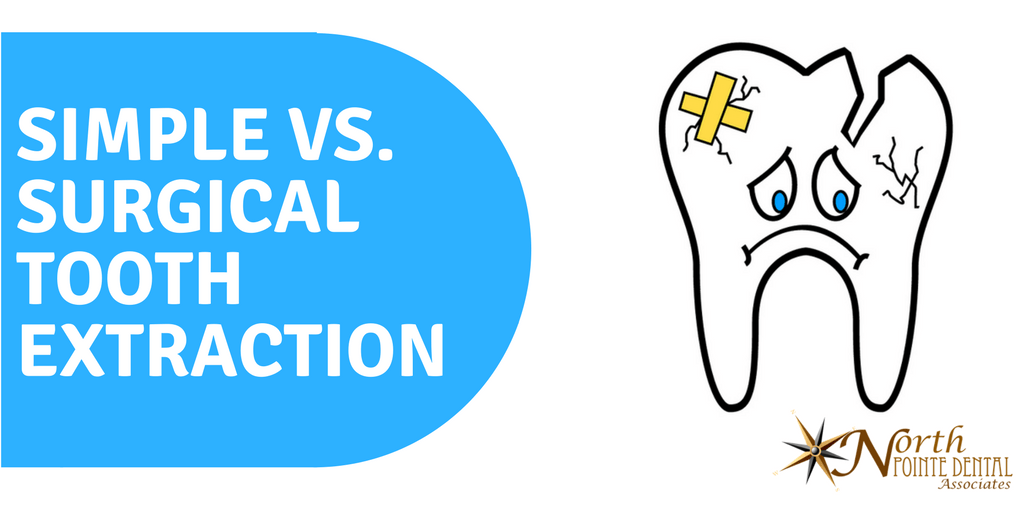 Simple Vs Surgical Tooth Extraction North Pointe Dental
