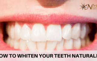 Image of the smile for How to Whiten Your Teeth Naturally article
