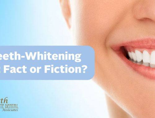 Five Teeth-whitening Myths: Fact or Fiction?