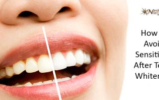 Avoid Sensitivity After Teeth Whitening
