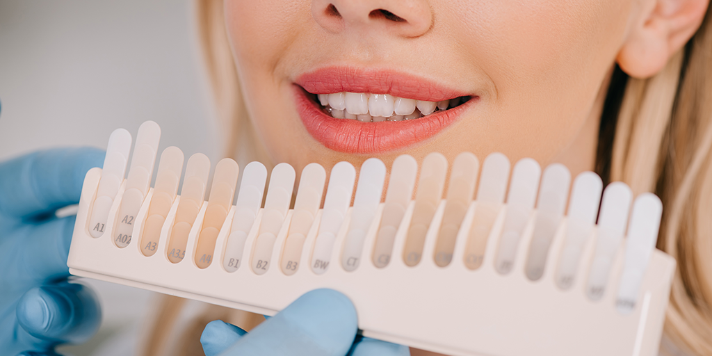 Five Teeth-whitening Myths Debunked