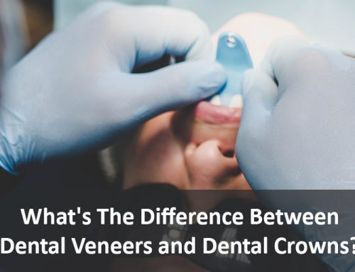 What's The Difference Between Dental Veneers and Dental Crowns?