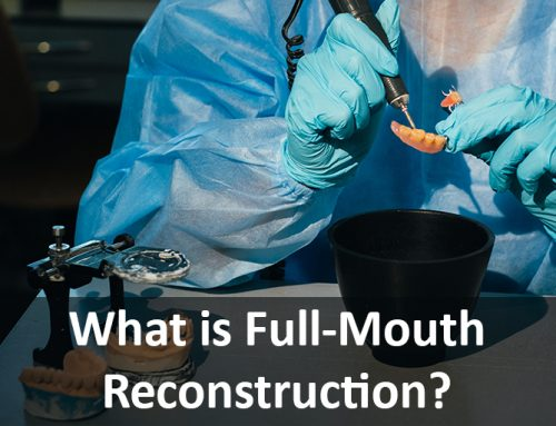 What is Full-Mouth Reconstruction?