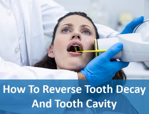 How To Reverse Tooth Decay And Tooth Cavity