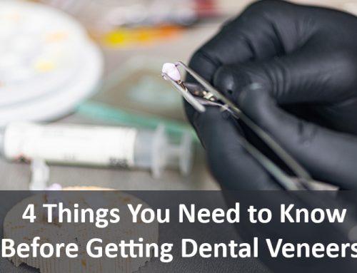 4 Things You Need to Know Before Getting Dental Veneers