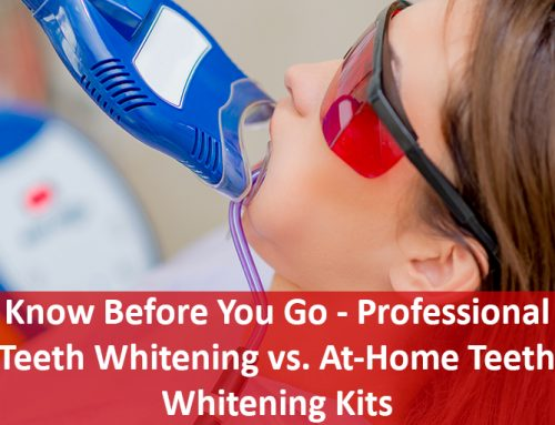 Know Before You Go – Professional Teeth Whitening vs. At-Home Teeth Whitening Kits