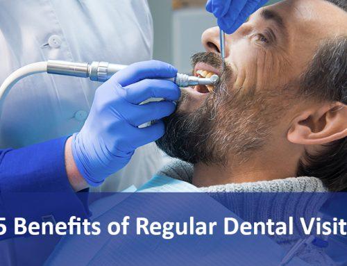 5 Benefits of Regular Dental Visits